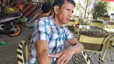 Vì sao CA huyện Phú Giáo từ chối giám định lại thương tích bị hại